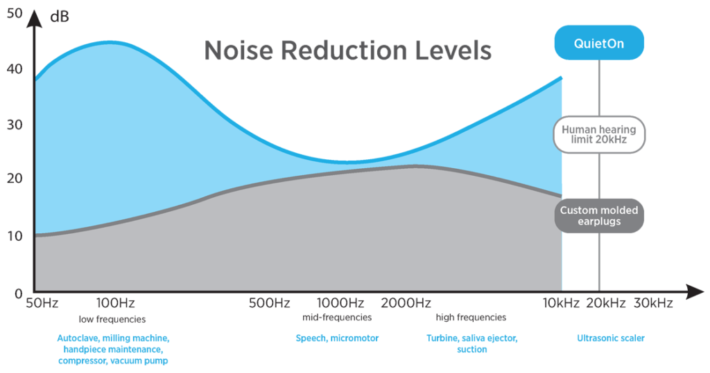 QuietOn Dental noise reduction chart